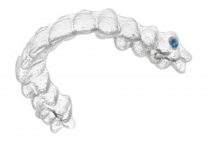 Invisalign Garches Saint Cloud Vaucresson