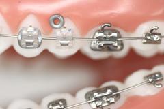 orthodontiste voisins le bretonneux