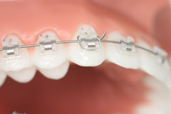 urgences_orthodontiegarches
