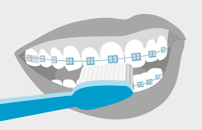 L'hygiène bucco-dentaire en Orthodontie